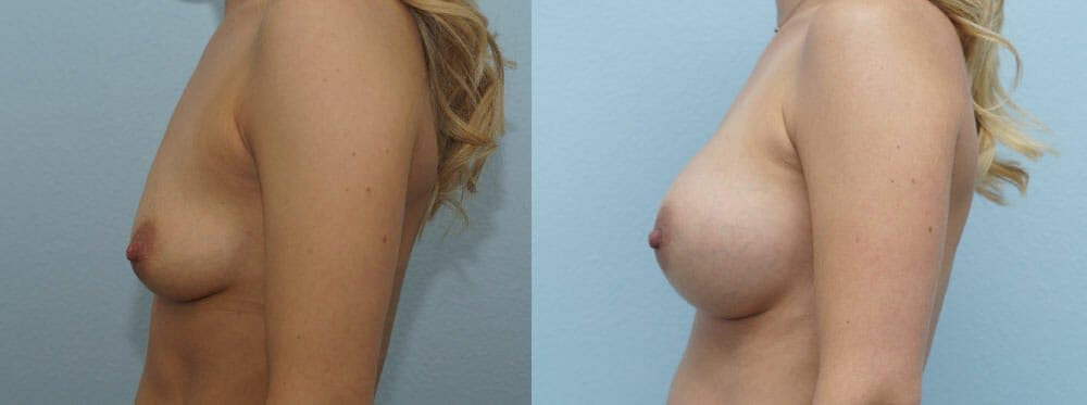 Breast Augmentation Gallery - Patient 48814046 - Image 5