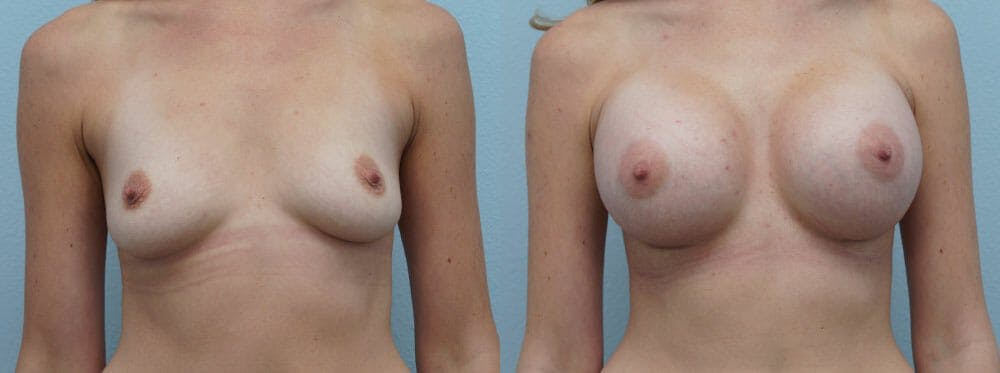 Breast Augmentation Gallery - Patient 48814053 - Image 1