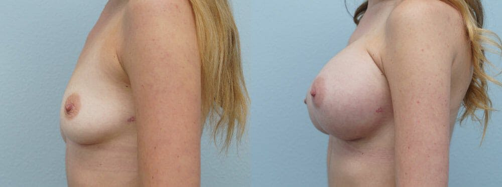 Breast Augmentation Gallery - Patient 48814053 - Image 3