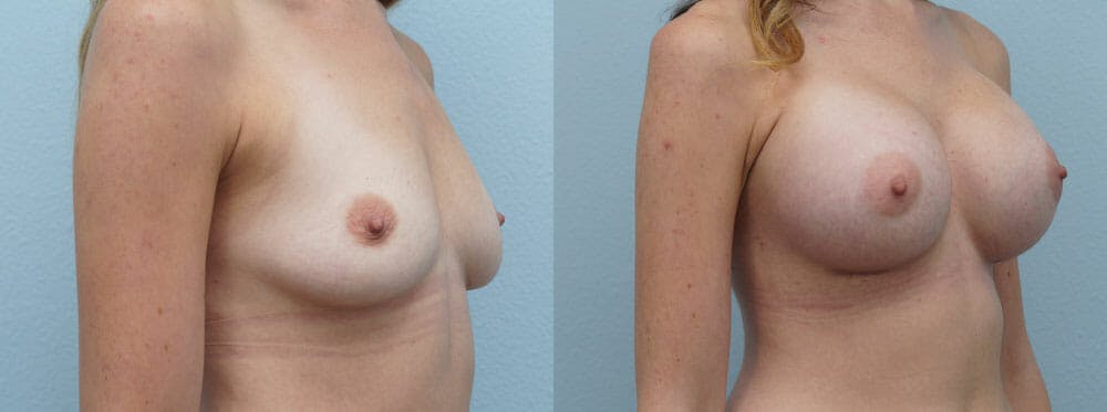 Breast Augmentation Gallery - Patient 48814053 - Image 4