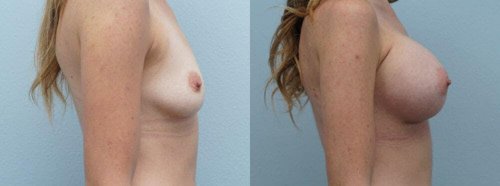 Breast Augmentation Gallery - Patient 48814053 - Image 5