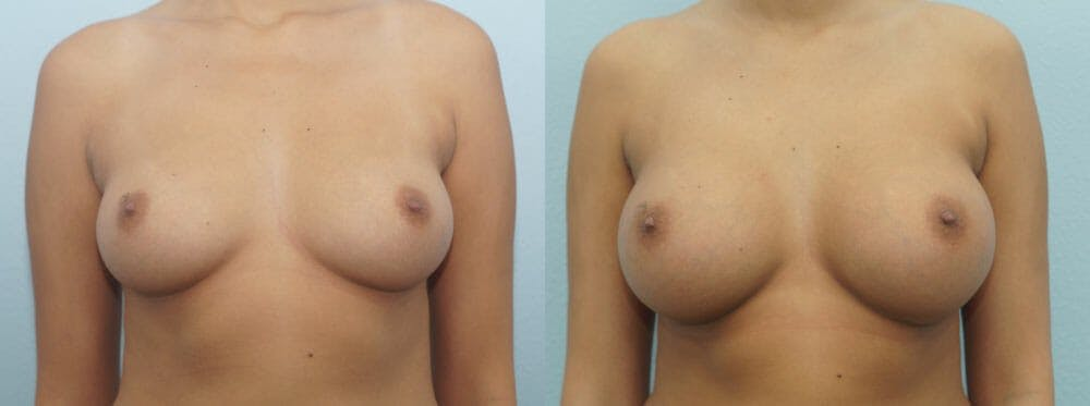 Breast Augmentation Gallery - Patient 48814060 - Image 1