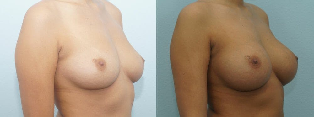 Breast Augmentation Gallery - Patient 48814060 - Image 2