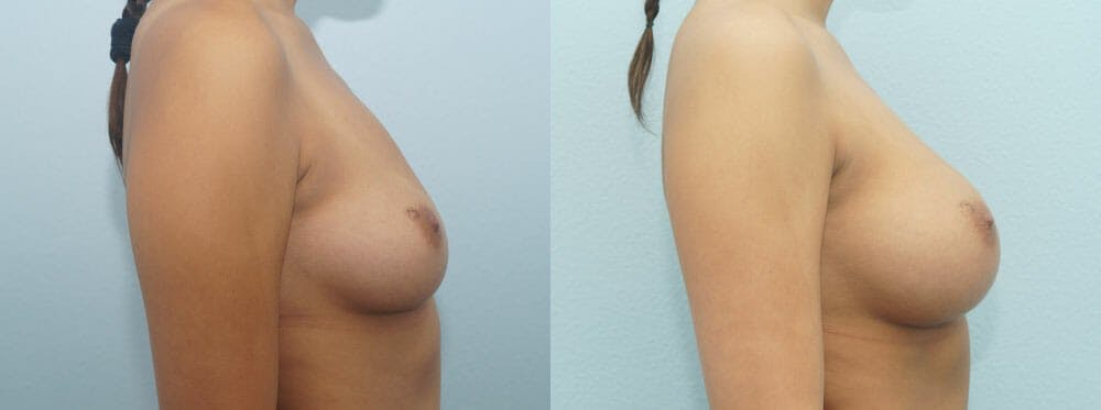 Breast Augmentation Gallery - Patient 48814060 - Image 3