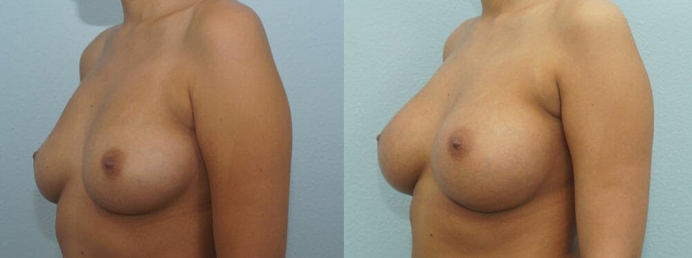 Breast Augmentation Gallery - Patient 48814060 - Image 4