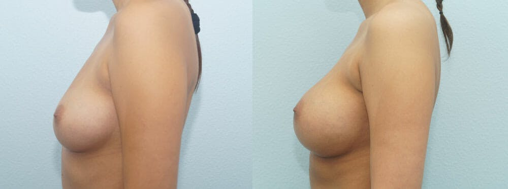 Breast Augmentation Gallery - Patient 48814060 - Image 5