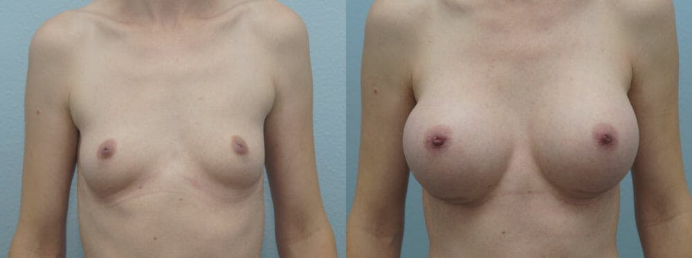 Breast Augmentation Gallery - Patient 48814065 - Image 1