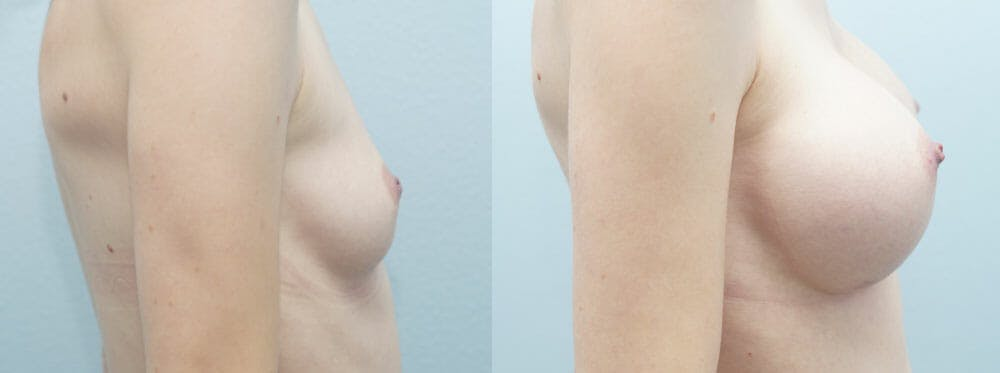 Breast Augmentation Gallery - Patient 48814065 - Image 2