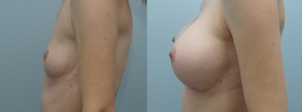 Breast Augmentation Gallery - Patient 48814065 - Image 3