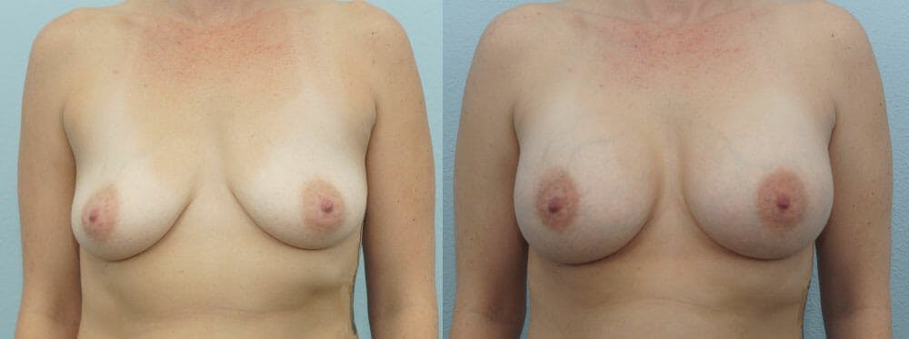Breast Augmentation Gallery - Patient 48814073 - Image 1