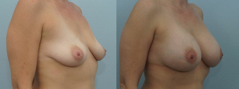 Breast Augmentation Gallery - Patient 48814073 - Image 2