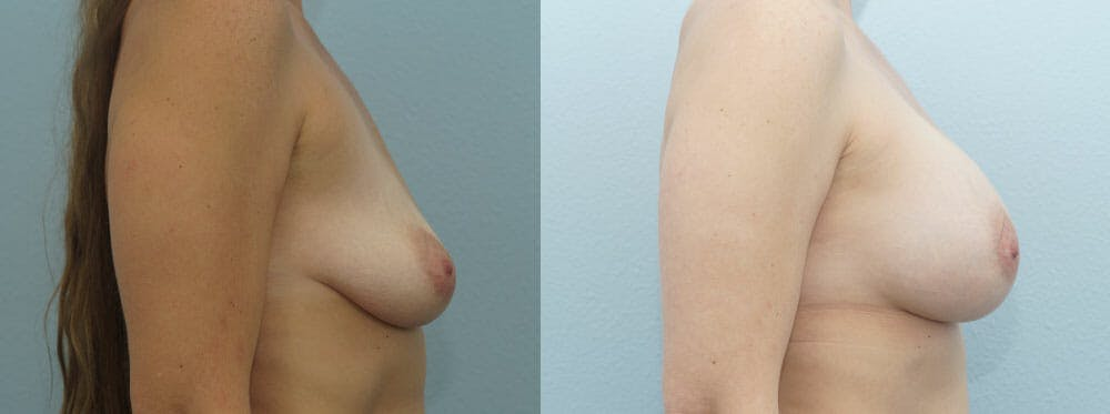 Breast Augmentation Gallery - Patient 48814073 - Image 3