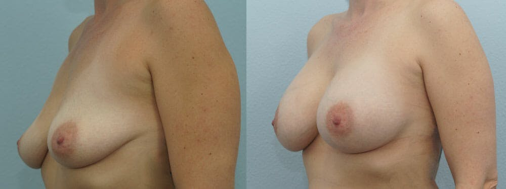 Breast Augmentation Gallery - Patient 48814073 - Image 4