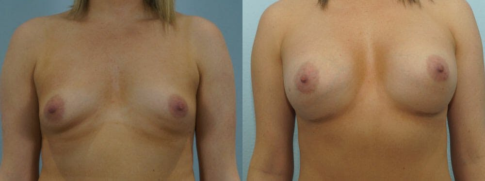 Breast Augmentation Gallery - Patient 48814079 - Image 1