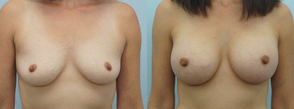 Breast Augmentation Gallery - Patient 48814086 - Image 1