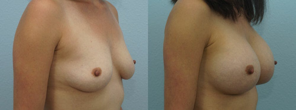 Breast Augmentation Gallery - Patient 48814086 - Image 2
