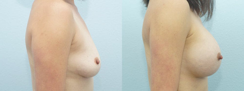 Breast Augmentation Gallery - Patient 48814086 - Image 3