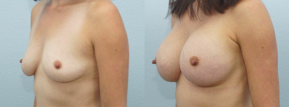 Breast Augmentation Gallery - Patient 48814086 - Image 4