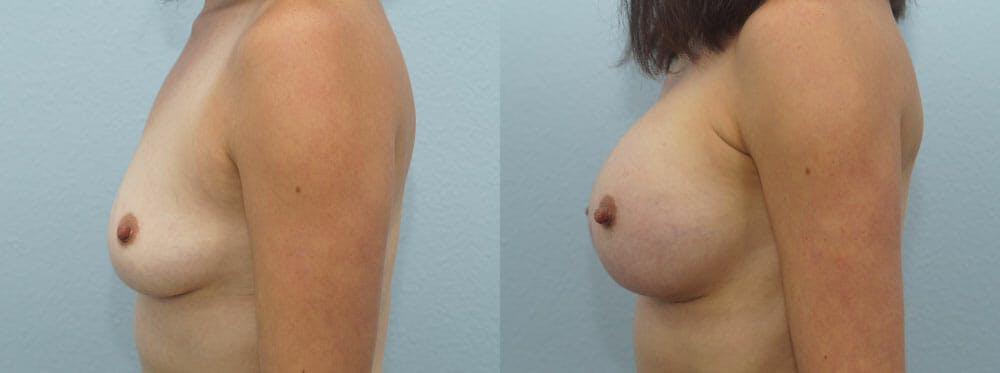 Breast Augmentation Gallery - Patient 48814086 - Image 5