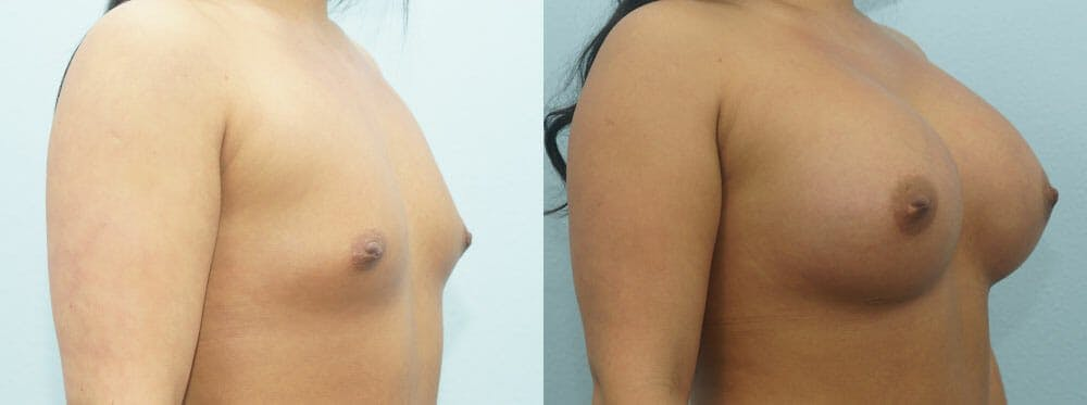 Breast Augmentation Gallery - Patient 48814095 - Image 2