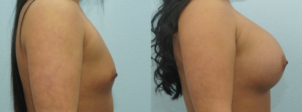 Breast Augmentation Gallery - Patient 48814095 - Image 3