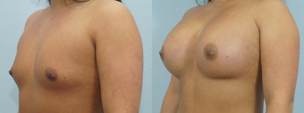Breast Augmentation Gallery - Patient 48814095 - Image 4
