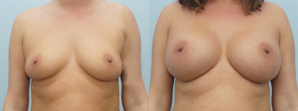 Breast Augmentation Gallery - Patient 48814101 - Image 1