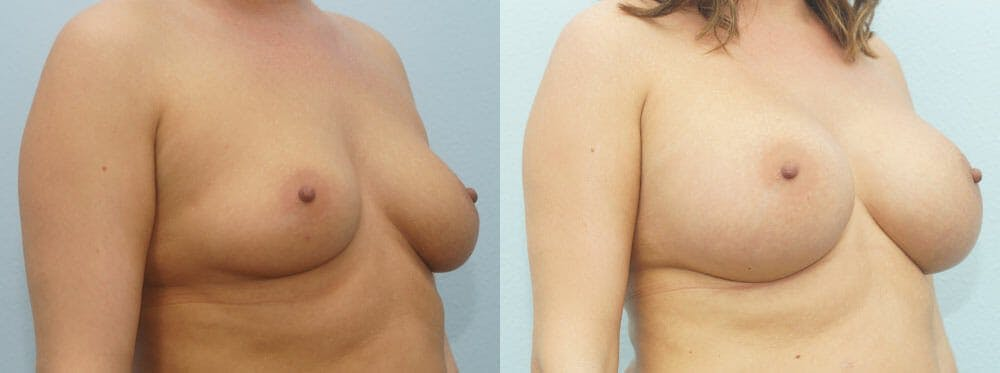 Breast Augmentation Gallery - Patient 48814101 - Image 2