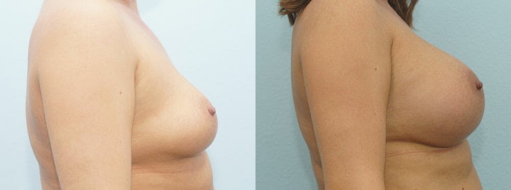 Breast Augmentation Gallery - Patient 48814101 - Image 3