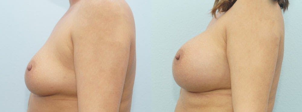 Breast Augmentation Gallery - Patient 48814101 - Image 5