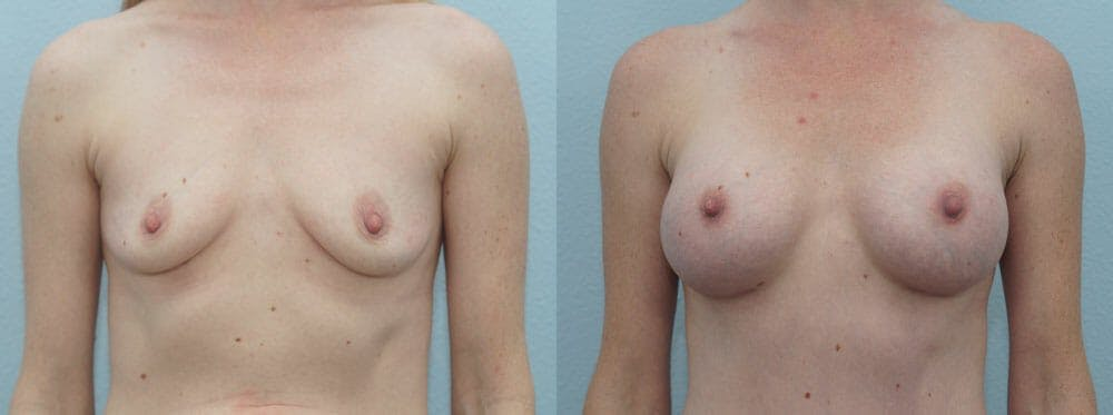 Breast Augmentation Gallery - Patient 48814113 - Image 1