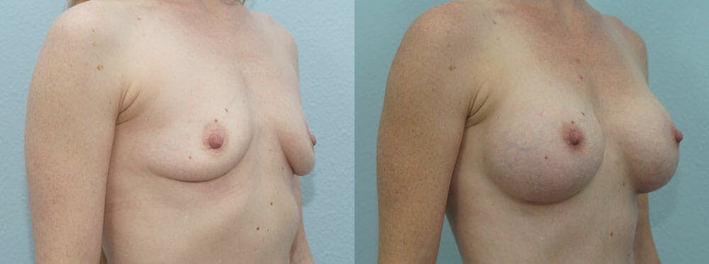 Breast Augmentation Gallery - Patient 48814113 - Image 2