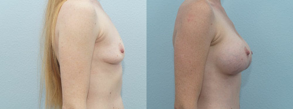 Breast Augmentation Gallery - Patient 48814113 - Image 3