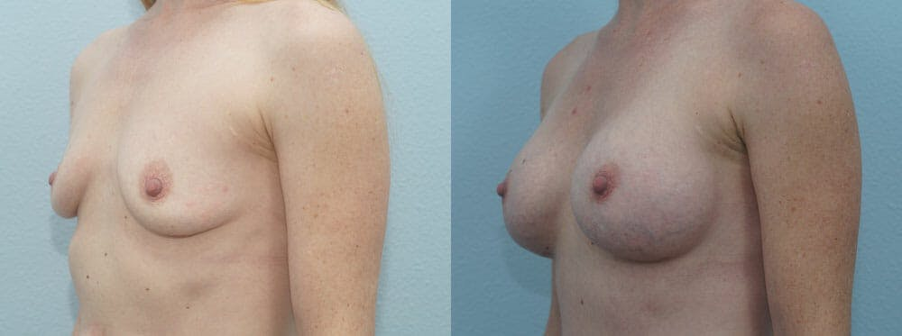 Breast Augmentation Gallery - Patient 48814113 - Image 4