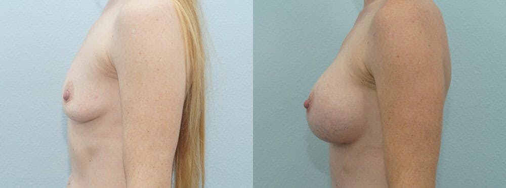 Breast Augmentation Gallery - Patient 48814113 - Image 5