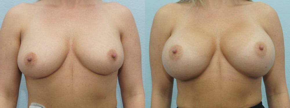 Breast Augmentation Gallery - Patient 48814122 - Image 1