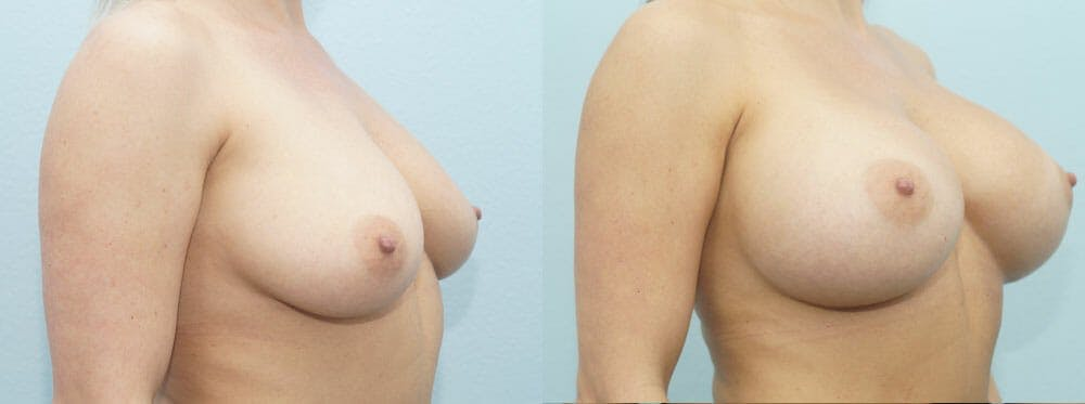 Breast Augmentation Gallery - Patient 48814122 - Image 2