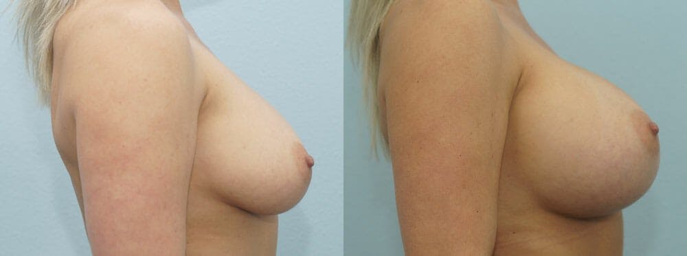 Breast Augmentation Gallery - Patient 48814122 - Image 3