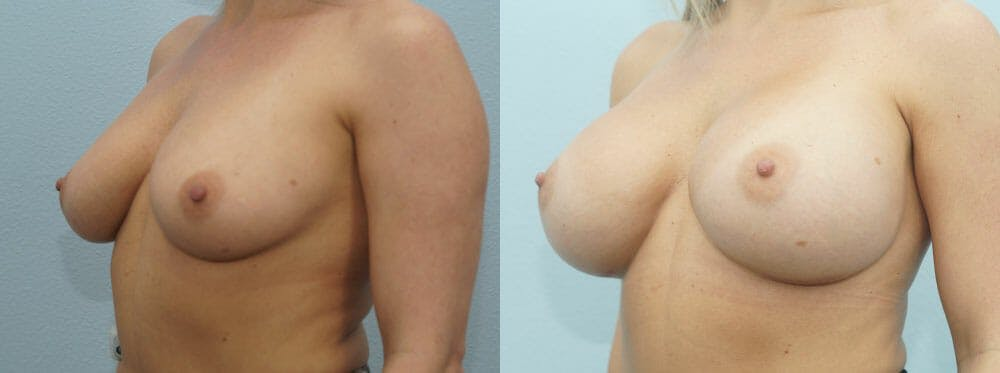 Breast Augmentation Gallery - Patient 48814122 - Image 4