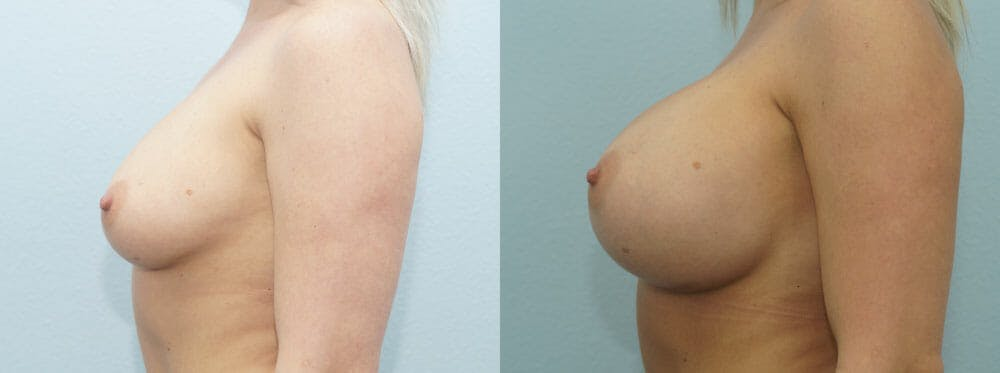 Breast Augmentation Gallery - Patient 48814122 - Image 5