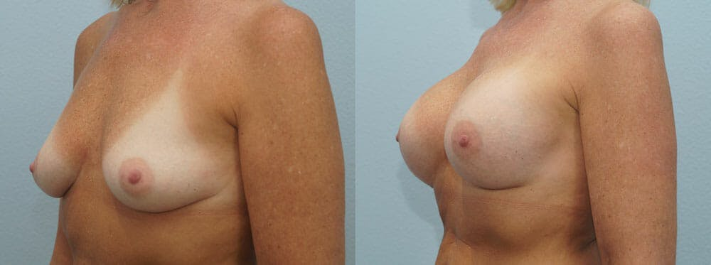 Breast Augmentation Gallery - Patient 48814127 - Image 2
