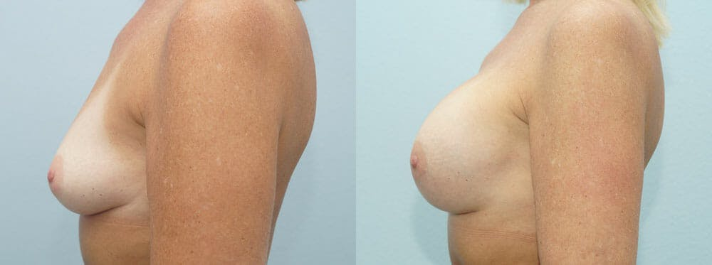 Breast Augmentation Gallery - Patient 48814127 - Image 3
