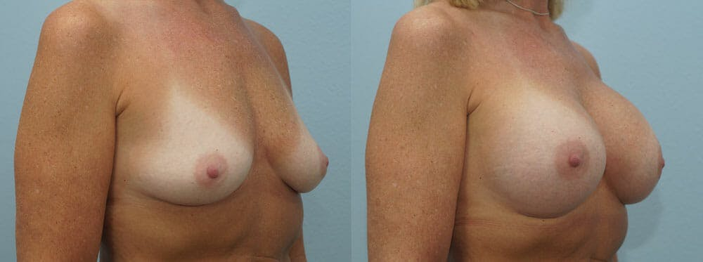 Breast Augmentation Gallery - Patient 48814127 - Image 4