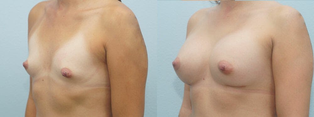 Breast Augmentation Gallery - Patient 48814135 - Image 2