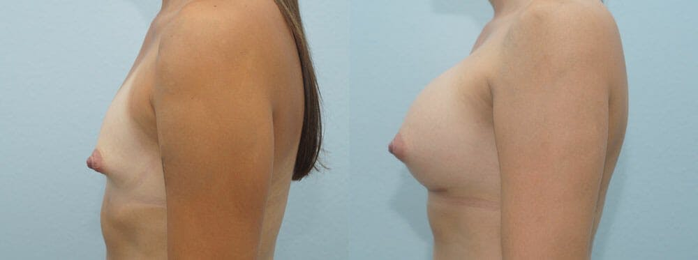 Breast Augmentation Gallery - Patient 48814135 - Image 3