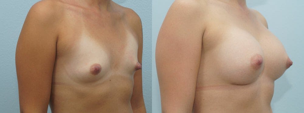Breast Augmentation Gallery - Patient 48814135 - Image 4