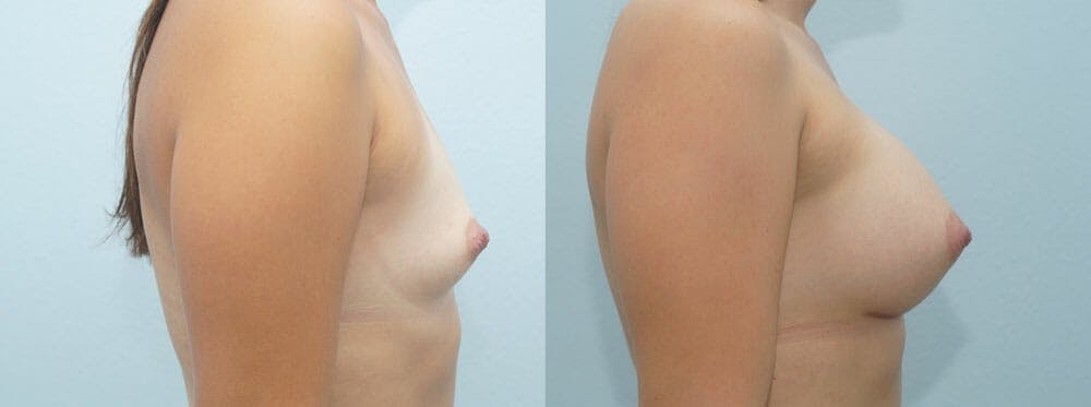 Breast Augmentation Gallery - Patient 48814135 - Image 5