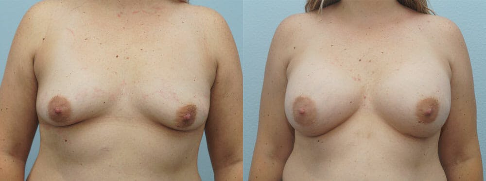 Breast Augmentation Gallery - Patient 48814139 - Image 1