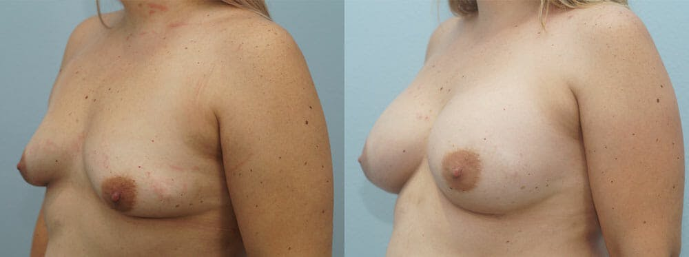 Breast Augmentation Gallery - Patient 48814139 - Image 2