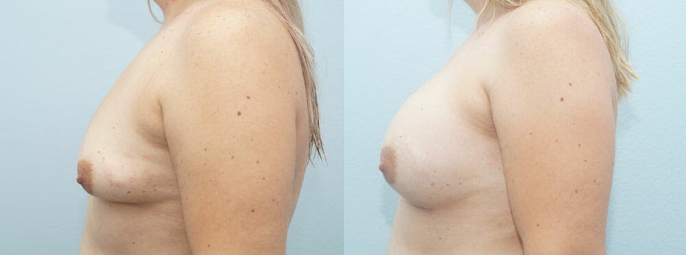 Breast Augmentation Gallery - Patient 48814139 - Image 3